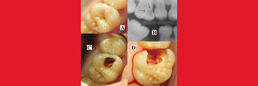 Dişlerimiz Neden Çürür?